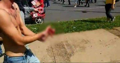 Vândalo esquerdista perde a mão com um rojão que iria atirar na polícia na manifestação de Brasília